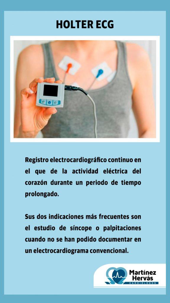 2020-11-17 - Holter ECG